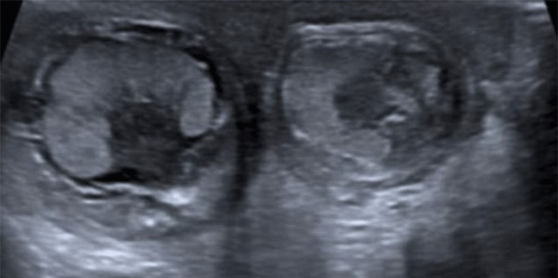 Baby Born With Twisted Testicles